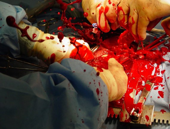 surgery on heart